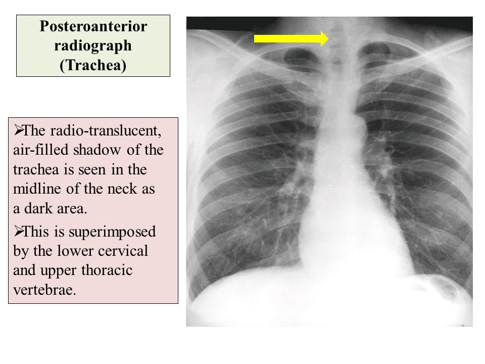 Posteroanterior radiograph (Trachea)  The radio-translucent, air-filled shadow of the trachea is seen in the midline of the neck as a dark area.  Th