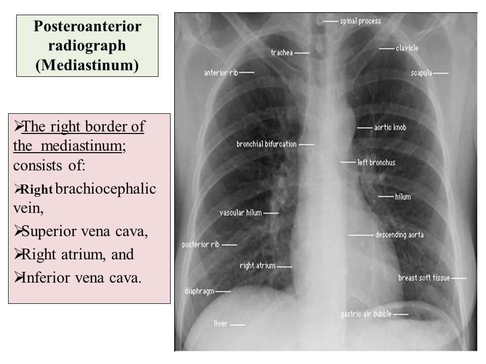 Posteroanterior radiograph (Mediastinum)  The right border of the mediastinum; consists of:  Right brachiocephalic vein,  Superior vena cava,  Rig