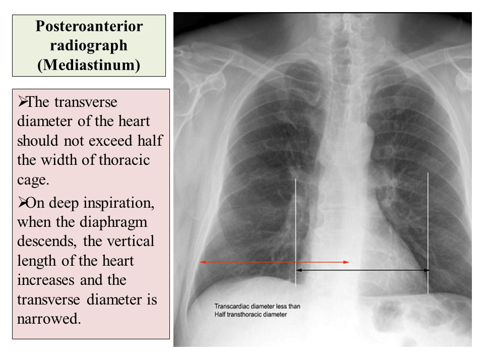 Posteroanterior radiograph (Mediastinum)  The transverse diameter of the heart should not exceed half the width of thoracic cage.  On deep inspirati