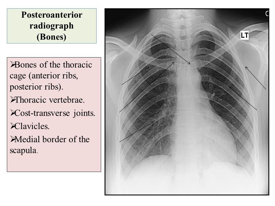 Posteroanterior radiograph (Bones)  Bones of the thoracic cage (anterior ribs, posterior ribs).  Thoracic vertebrae.  Cost-transverse joints.  Cla