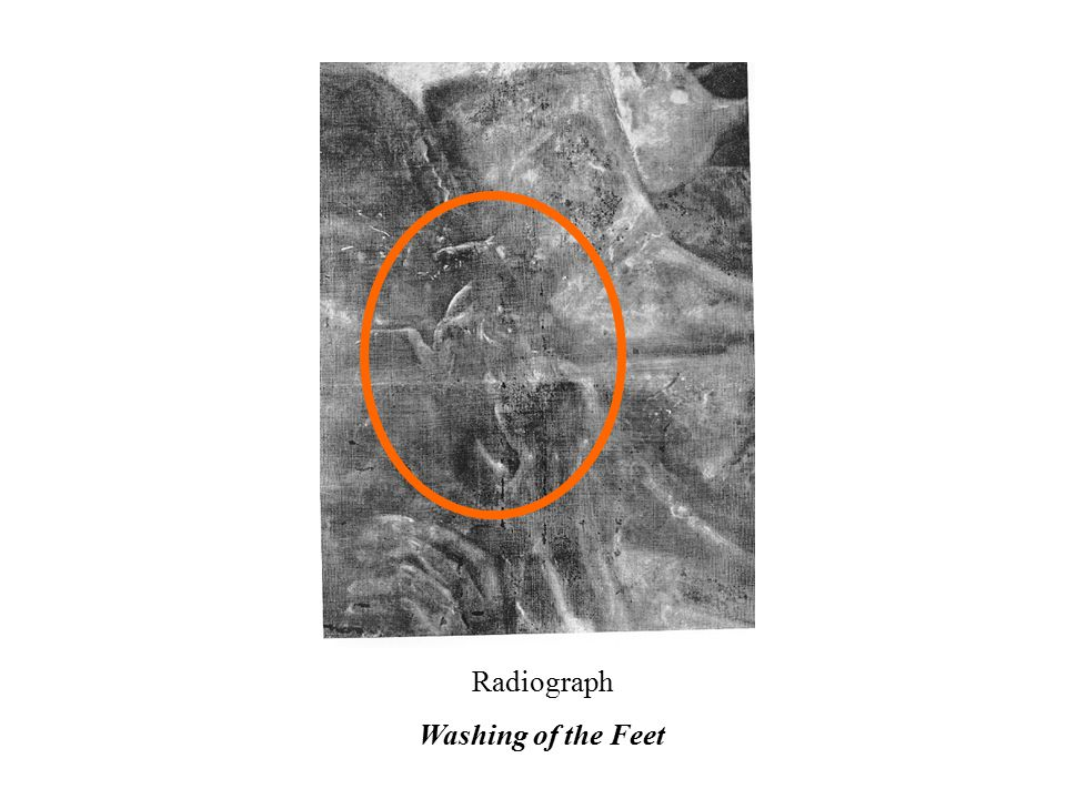 Radiograph Washing of the Feet
