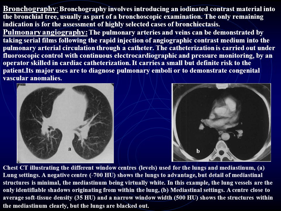 Bronchography: Bronchography involves introducing an iodinated con­trast material into the bronchial tree, usually as part of a bronchoscopic examinat