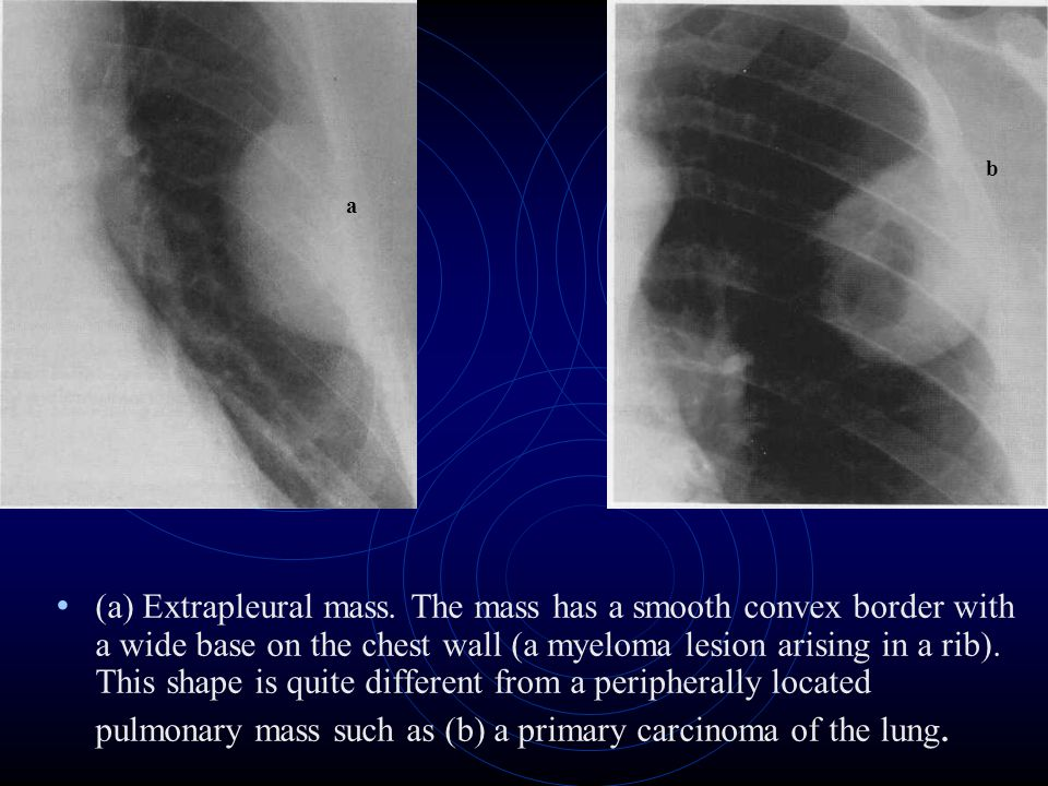(a) Extrapleural mass. The mass has a smooth convex border with a wide base on the chest wall (a myeloma lesion arising in a rib). This shape is quite