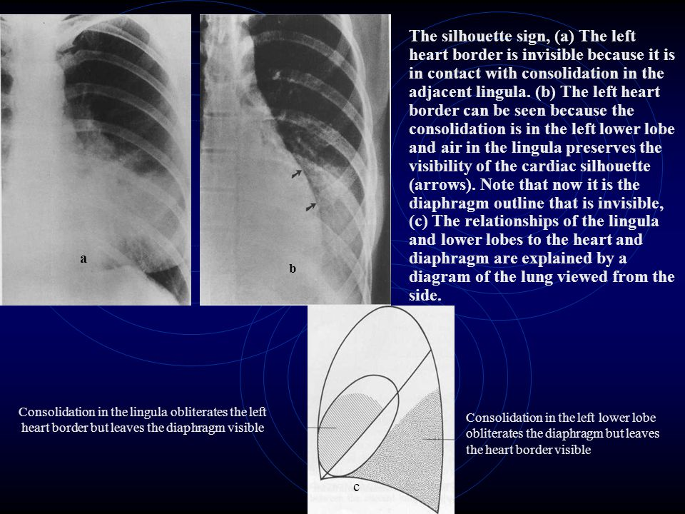 The silhouette sign, (a) The left heart border is invisible because it is in contact with consolidation in the adjacent lingula. (b) The left heart bo
