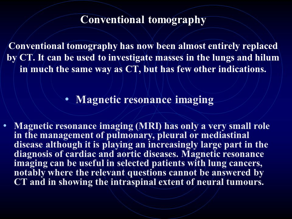 Conventional tomography Conventional tomography has now been almost entirely replaced by CT. It can be used to investigate masses in the lungs and hil