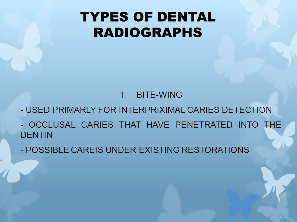 1.BITE-WING - USED PRIMARLY FOR INTERPRIXIMAL CARIES DETECTION - OCCLUSAL CARIES THAT HAVE PENETRATED INTO THE DENTIN - POSSIBLE CAREIS UNDER EXISTING RESTORATIONS TYPES OF DENTAL RADIOGRAPHS