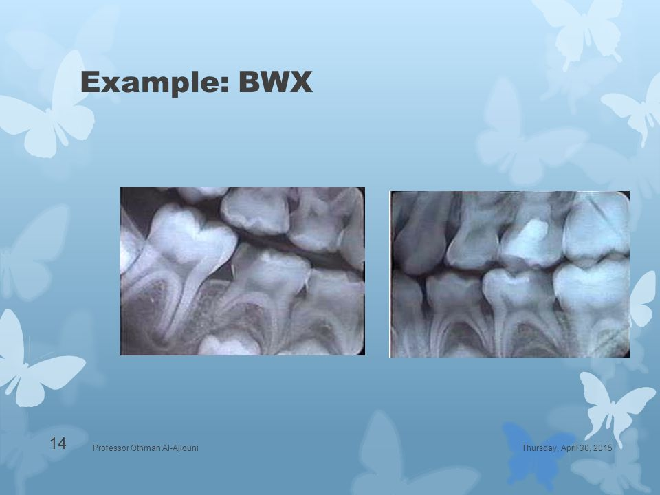 Example: BWX Thursday, April 30, 2015Professor Othman Al-Ajlouni 14