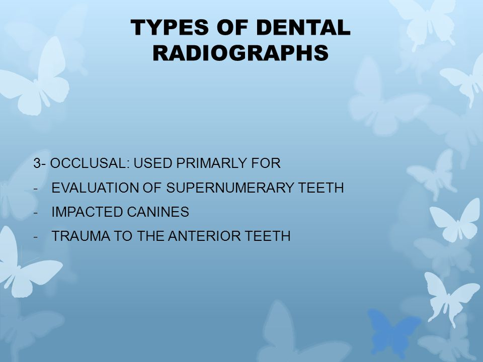3- OCCLUSAL: USED PRIMARLY FOR -EVALUATION OF SUPERNUMERARY TEETH -IMPACTED CANINES -TRAUMA TO THE ANTERIOR TEETH TYPES OF DENTAL RADIOGRAPHS