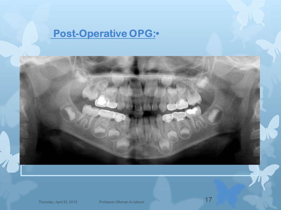 Post-Operative OPG: Thursday, April 30, 2015Professor Othman Al-Ajlouni 17