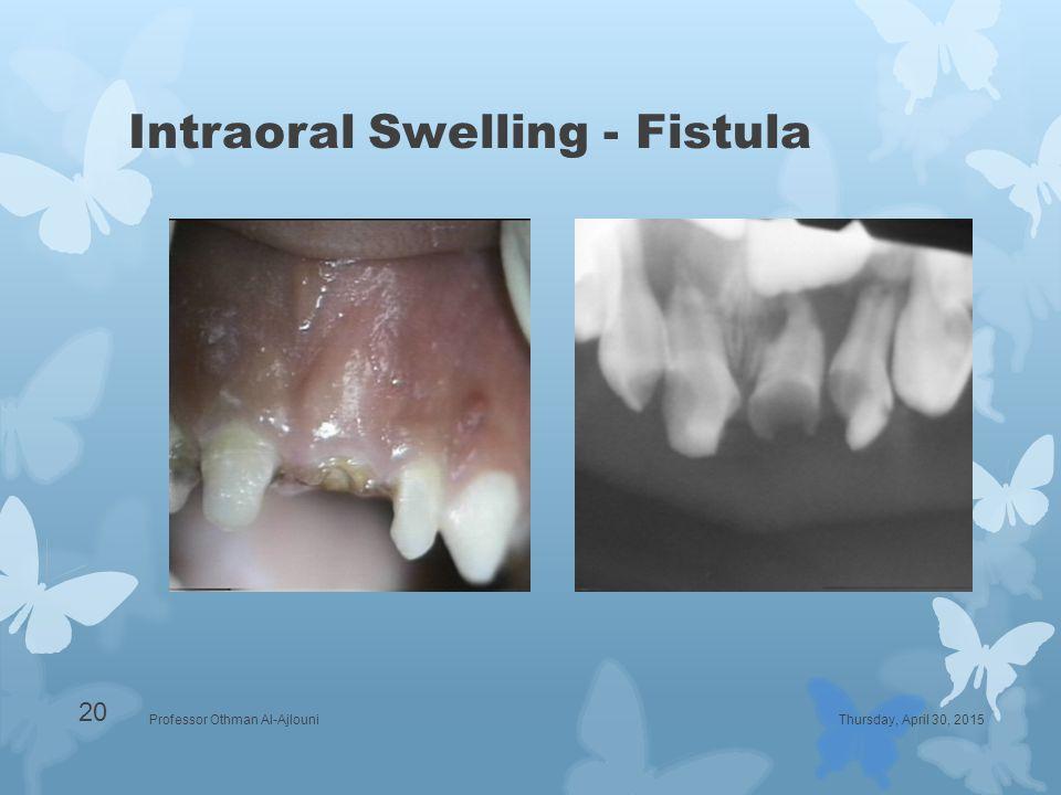 Intraoral Swelling - Fistula Thursday, April 30, 2015Professor Othman Al-Ajlouni 20