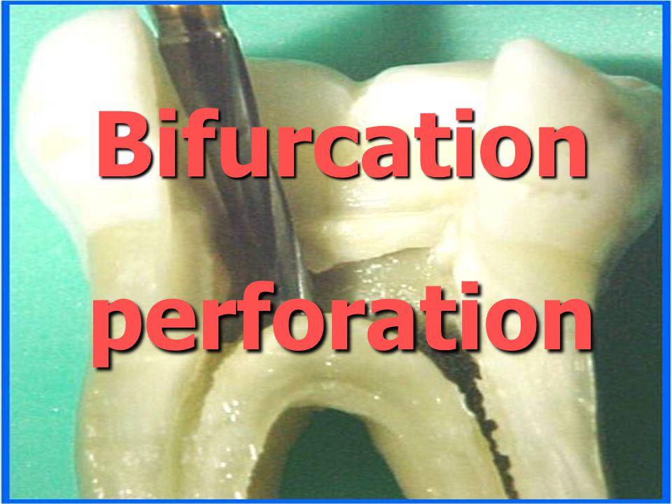 Bifurcation perforation