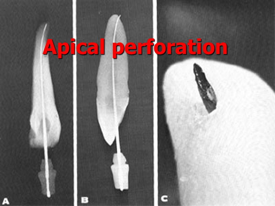 Apical perforation