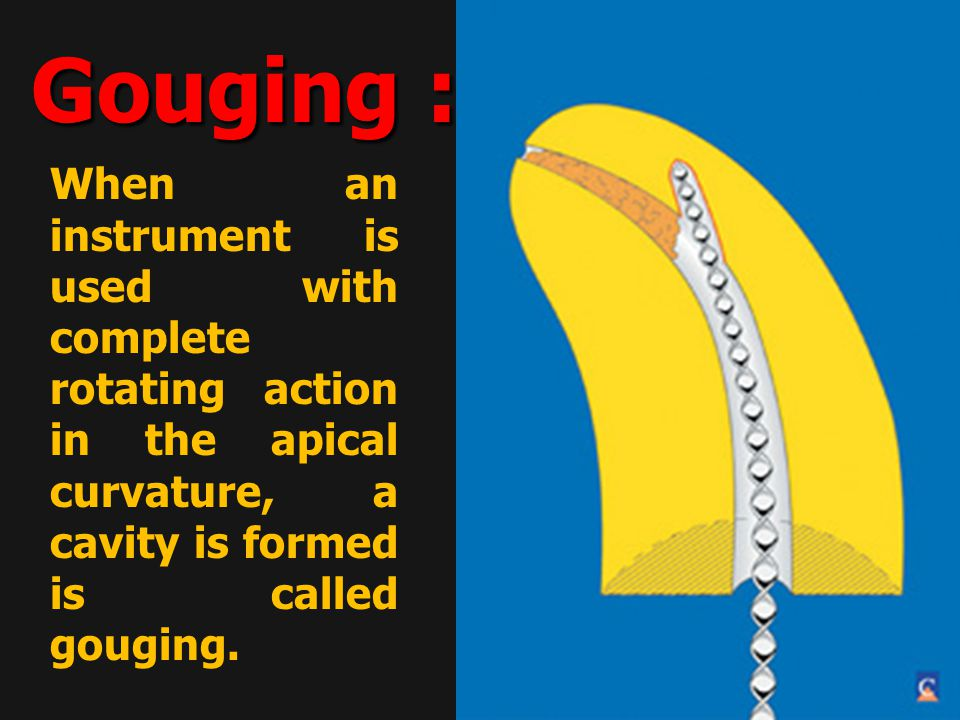 When an instrument is used with complete rotating action in the apical curvature, a cavity is formed is called gouging.