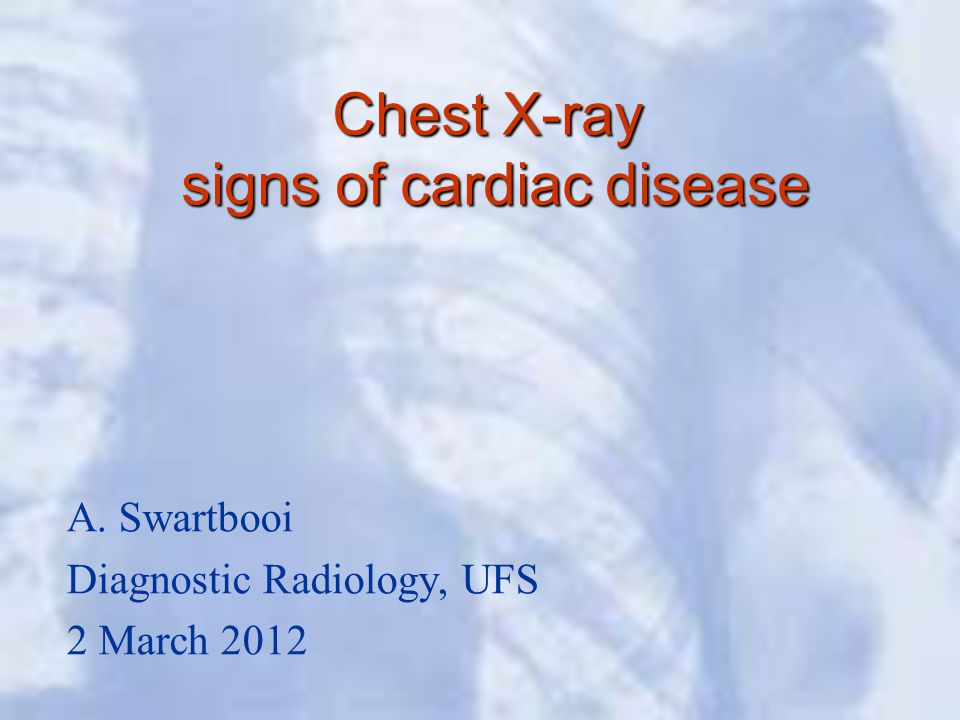Chest X-ray signs of cardiac disease A. Swartbooi Diagnostic Radiology, UFS 2 March 2012