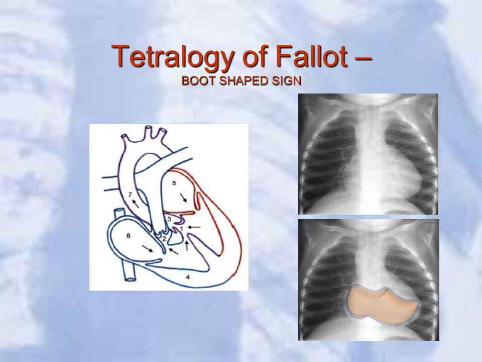 Tetralogy of Fallot – BOOT SHAPED SIGN