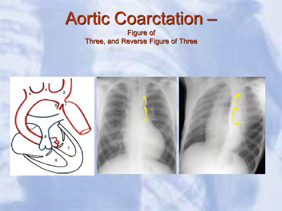 Aortic Coarctation – Figure of Three, and Reverse Figure of Three