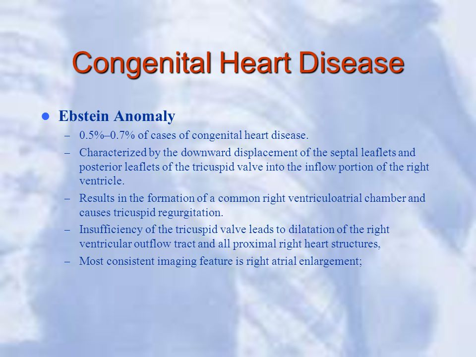 Congenital Heart Disease Ebstein Anomaly – 0.5%–0.7% of cases of congenital heart disease. – Characterized by the downward displacement of the septal