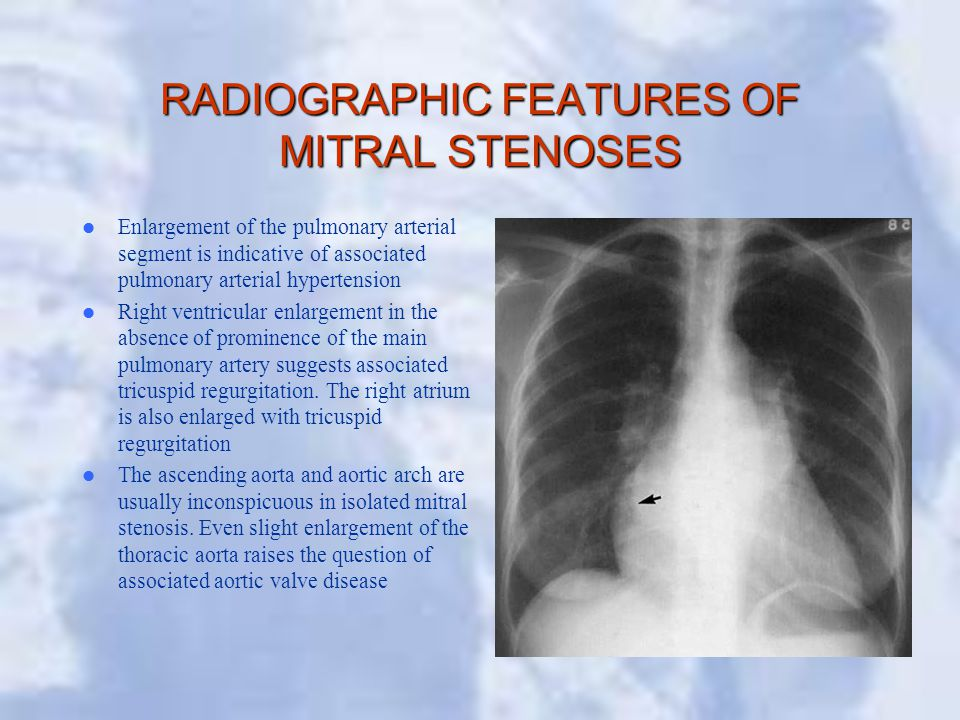 RADIOGRAPHIC FEATURES OF MITRAL STENOSES Enlargement of the pulmonary arterial segment is indicative of associated pulmonary arterial hypertension Right ventricular enlargement in the absence of prominence of the main pulmonary artery suggests associated tricuspid regurgitation.