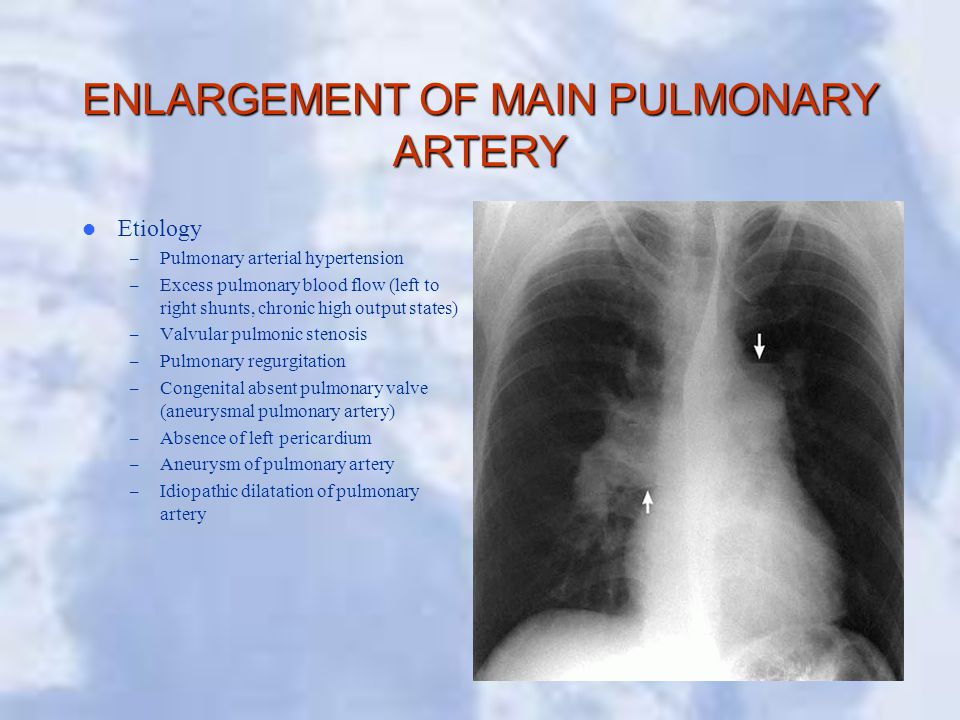 ENLARGEMENT OF MAIN PULMONARY ARTERY Etiology – Pulmonary arterial hypertension – Excess pulmonary blood flow (left to right shunts, chronic high output states) – Valvular pulmonic stenosis – Pulmonary regurgitation – Congenital absent pulmonary valve (aneurysmal pulmonary artery) – Absence of left pericardium – Aneurysm of pulmonary artery – Idiopathic dilatation of pulmonary artery