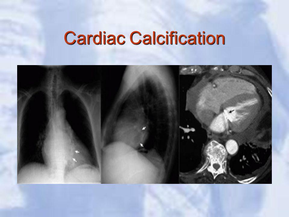 Cardiac Calcification