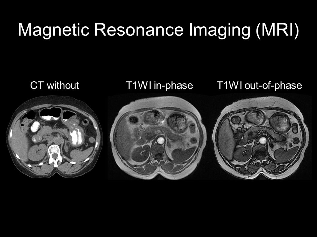 Magnetic Resonance Imaging (MRI) CT without T1WI in-phase T1WI out-of-phase