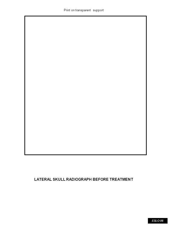 ESLO 07 TRACING OF LATERAL SKULL RADIOGRAPH BEFORE TREATMENT Print on transparent support