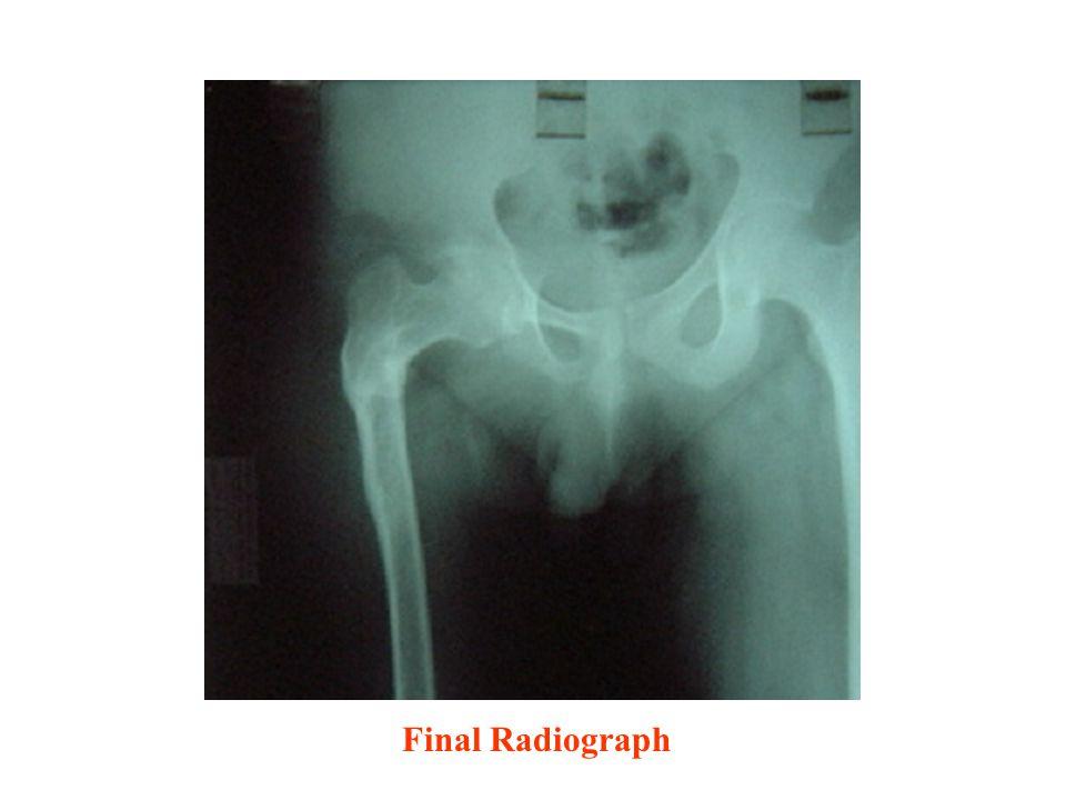 Final Radiograph