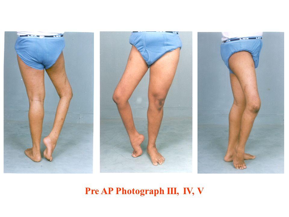 Pre AP Photograph III, IV, V