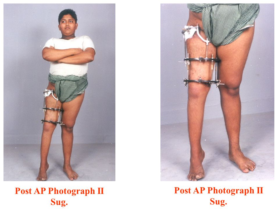 Post AP Photograph II Sug.