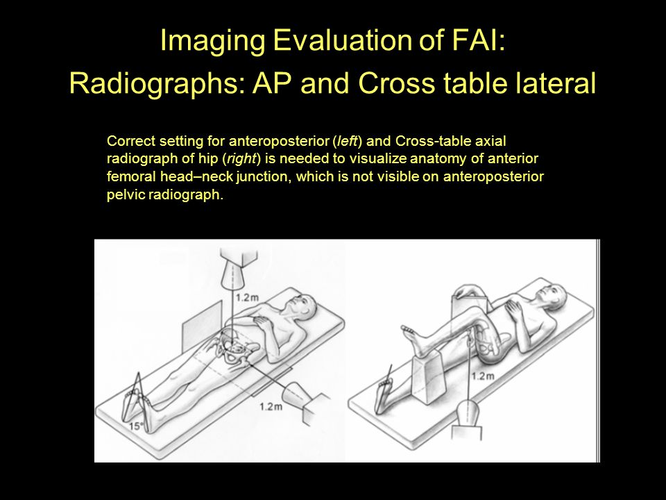 Imaging Evaluation of FAI: Radiographs: AP and Cross table lateral Correct setting for anteroposterior (left) and Cross-table axial radiograph of hip