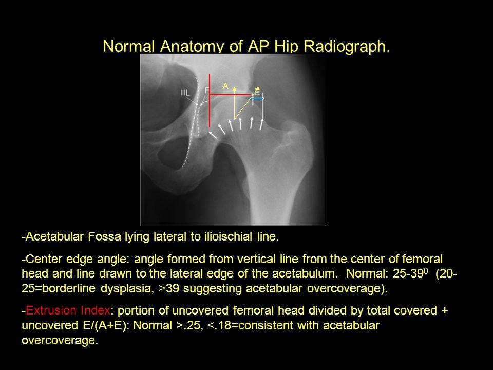 Normal Anatomy of AP Hip Radiograph. -Acetabular Fossa lying lateral to ilioischial line. -Center edge angle: angle formed from vertical line from the