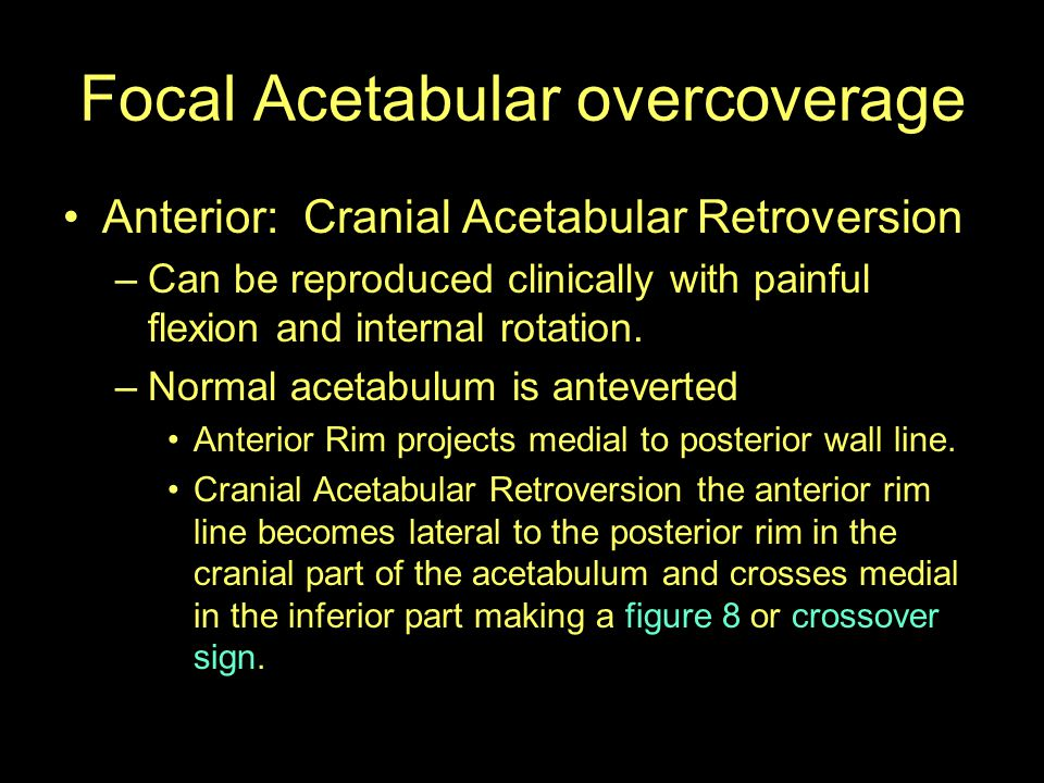 Focal Acetabular overcoverage Anterior: Cranial Acetabular Retroversion –Can be reproduced clinically with painful flexion and internal rotation. –Nor