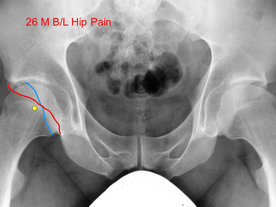 Femoral Acetabular Impingement: FAI 26 M B/L Hip Pain