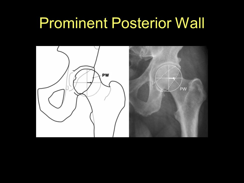 Prominent Posterior Wall