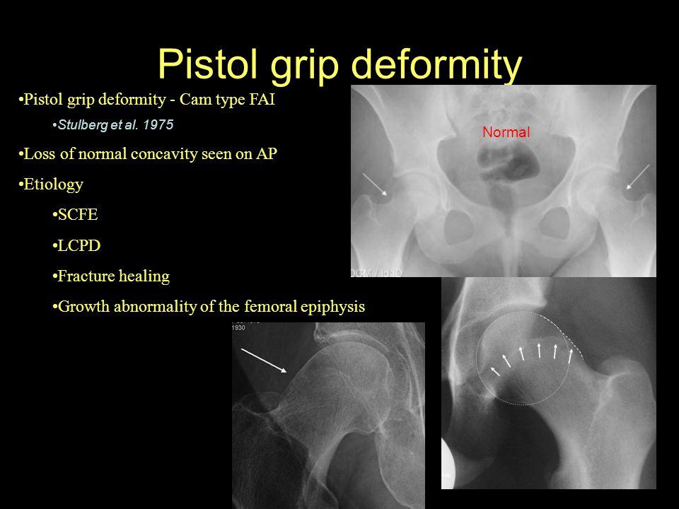 Pistol grip deformity Pistol grip deformity - Cam type FAI Stulberg et al. 1975 Loss of normal concavity seen on AP Etiology SCFE LCPD Fracture healin