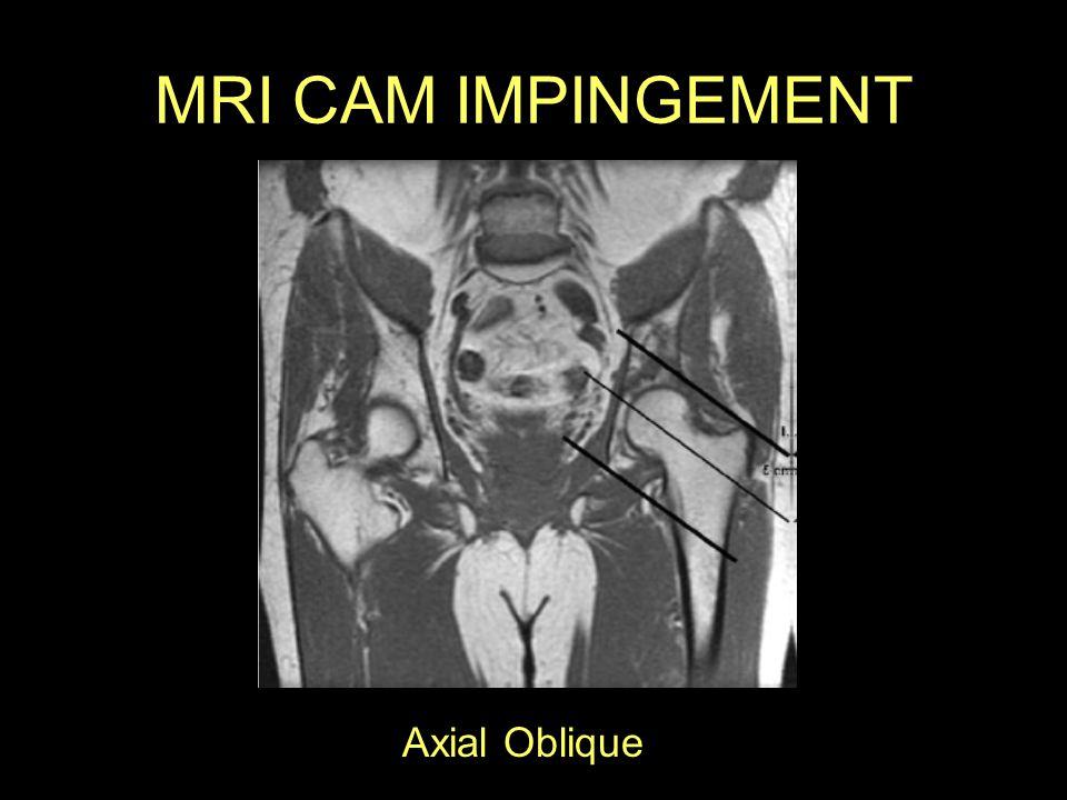 MRI CAM IMPINGEMENT Axial Oblique