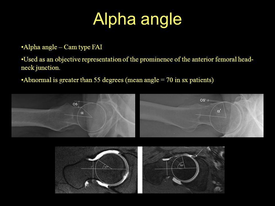 Alpha angle Alpha angle – Cam type FAI Used as an objective representation of the prominence of the anterior femoral head- neck junction. Abnormal is