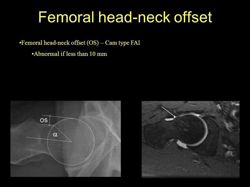 Femoral head-neck offset Femoral head-neck offset (OS) – Cam type FAI Abnormal if less than 10 mm