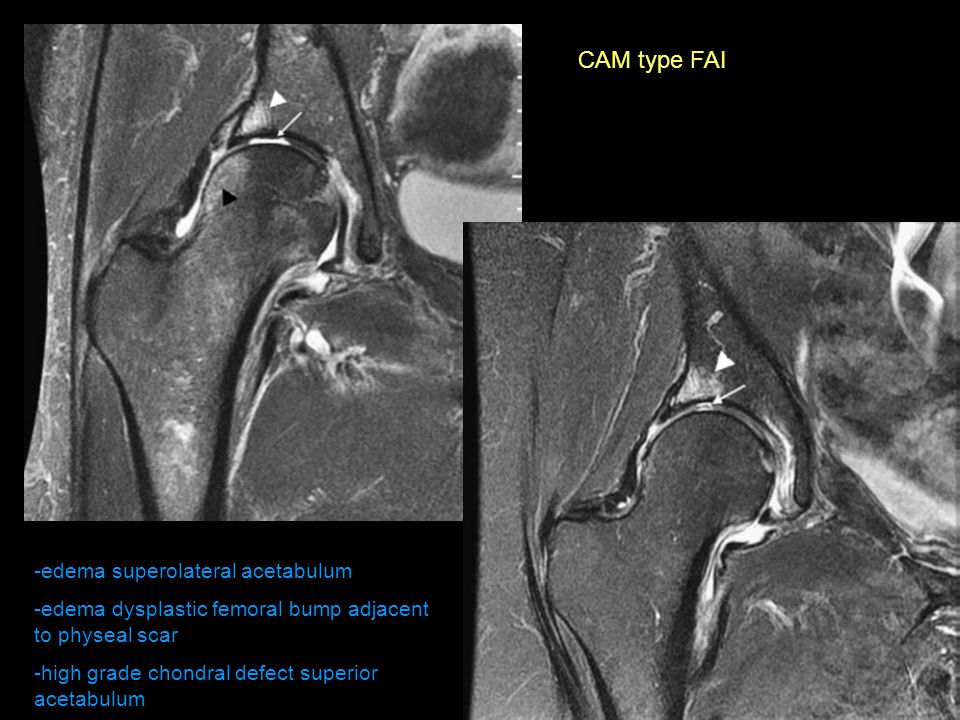 CAM type FAI -edema superolateral acetabulum -edema dysplastic femoral bump adjacent to physeal scar -high grade chondral defect superior acetabulum