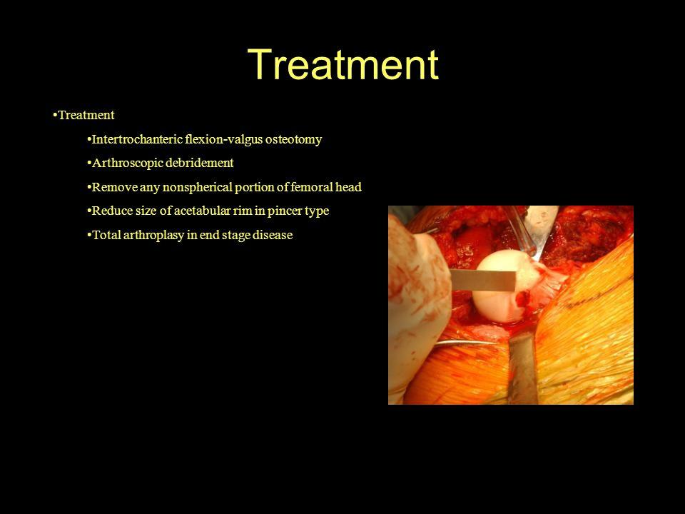 Treatment Intertrochanteric flexion-valgus osteotomy Arthroscopic debridement Remove any nonspherical portion of femoral head Reduce size of acetabula