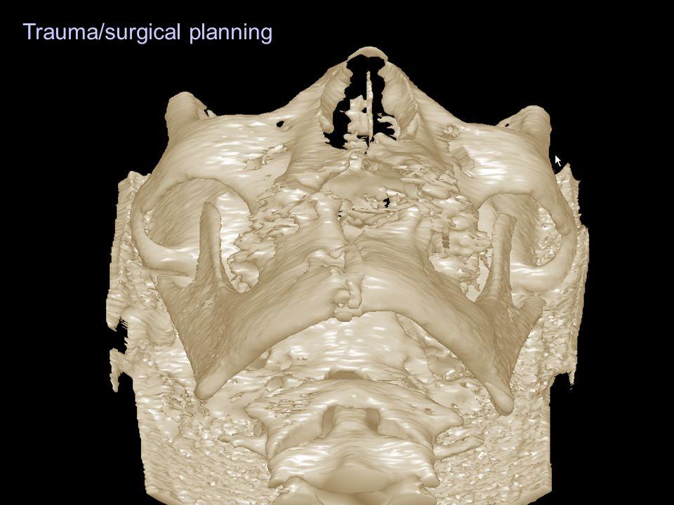 Trauma/surgical planning