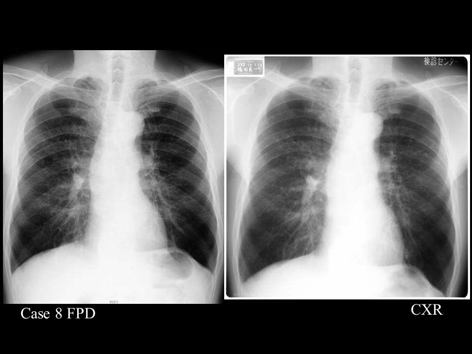 Case 8 FPD CXR