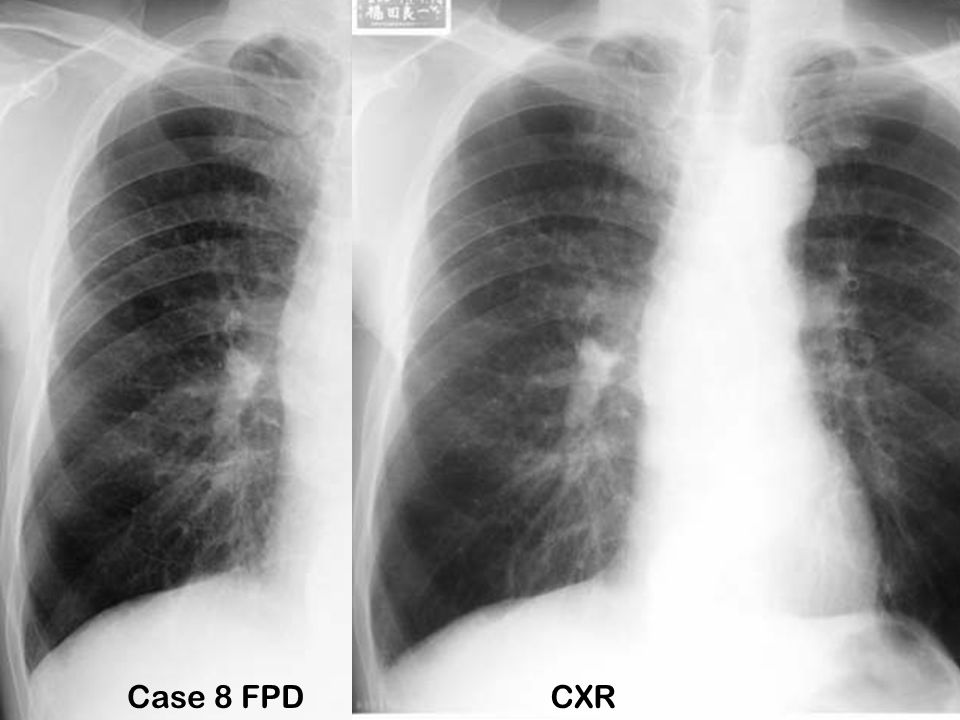 Case 8 FPDCXR