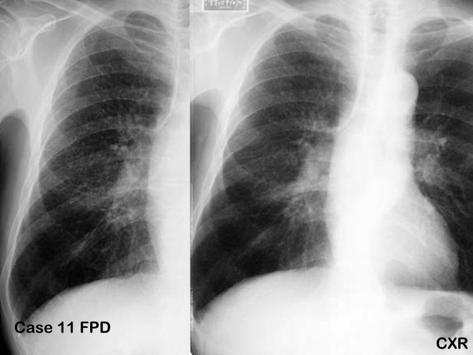 Case 11 FPD CXR