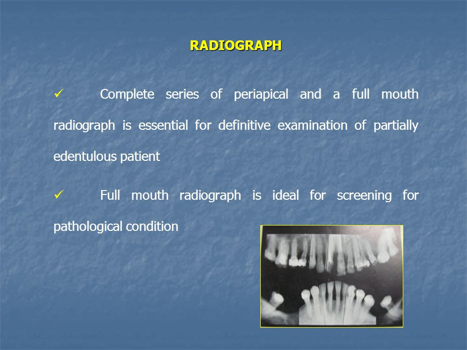 Periapical radiographs helps in determining 1.Crown root ratio of remaining teeth 2.Status of periodontal ligament space 3.Lamina dura of abutment teeth 4.Quantity of bone on the residual ridge in edentulous area