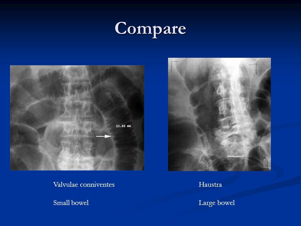 Compare Haustra Large bowel Valvulae conniventes Small bowel