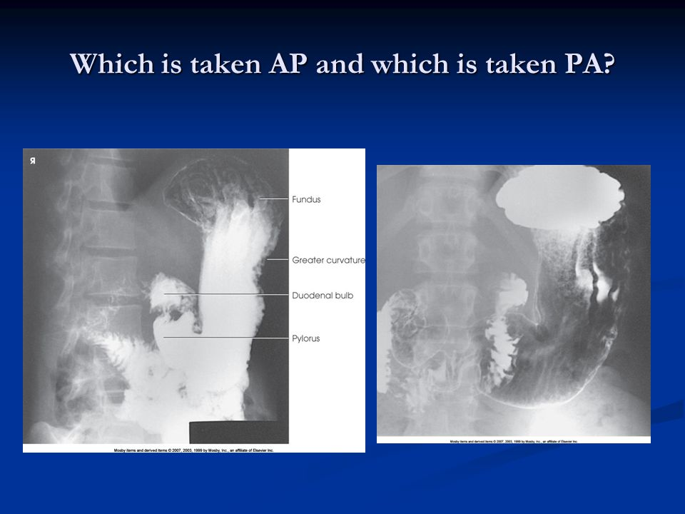 Which is taken AP and which is taken PA?