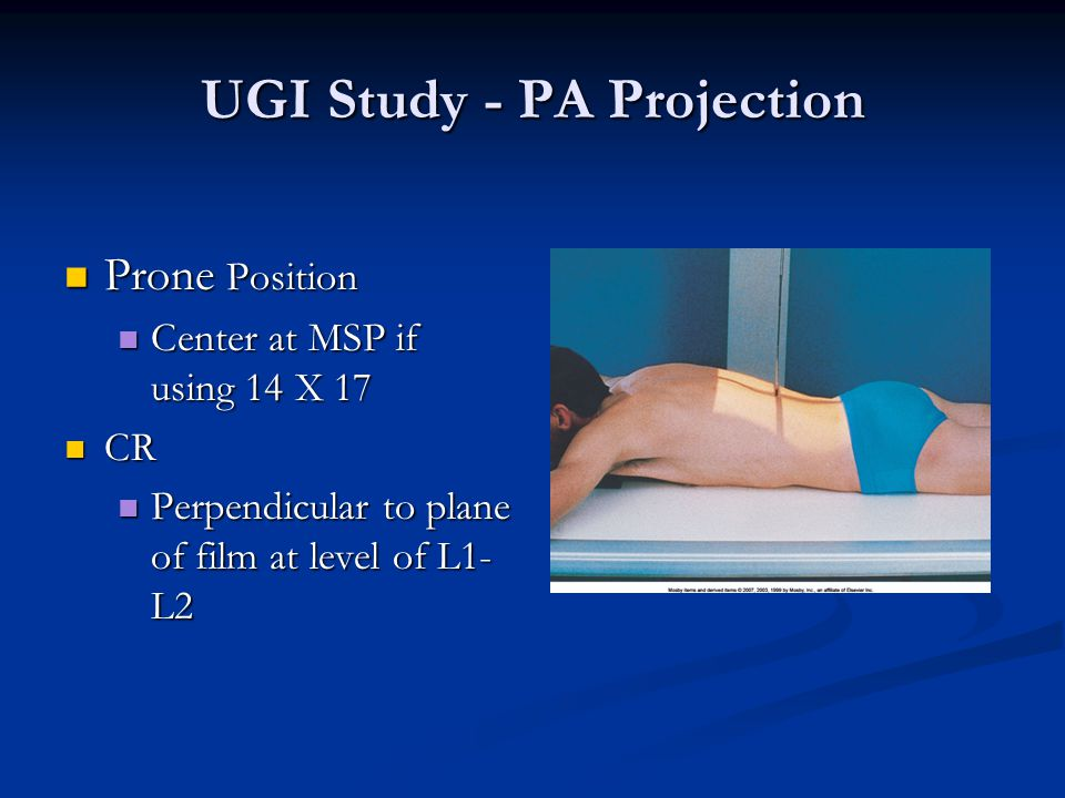 UGI Study - PA Projection Prone Position Prone Position Center at MSP if using 14 X 17 Center at MSP if using 14 X 17 CR CR Perpendicular to plane of film at level of L1- L2 Perpendicular to plane of film at level of L1- L2