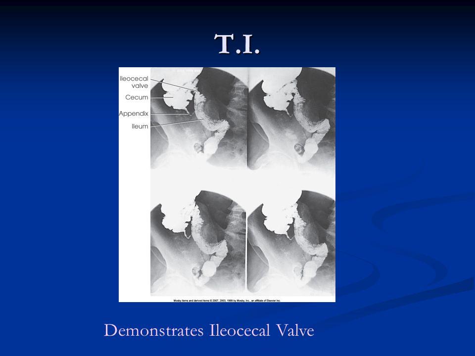 T.I. Demonstrates Ileocecal Valve