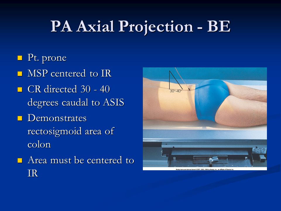PA Axial Projection - BE Pt.prone Pt.